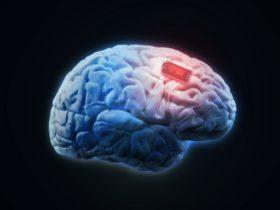 beyin çip tümör